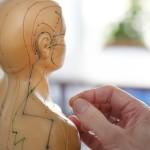 Akupunktur, 547030-101017642491_GDT-9